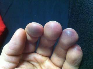 Gitara i sposoby na bolące opuszki palców
